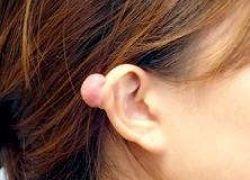 کلویید گوش چیست