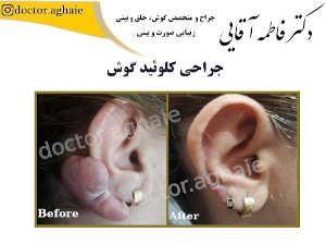 koloeid-ear3