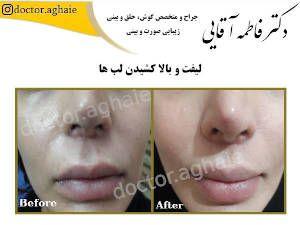 lip-lift4
