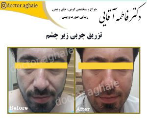 fat-injection-under-eyes1